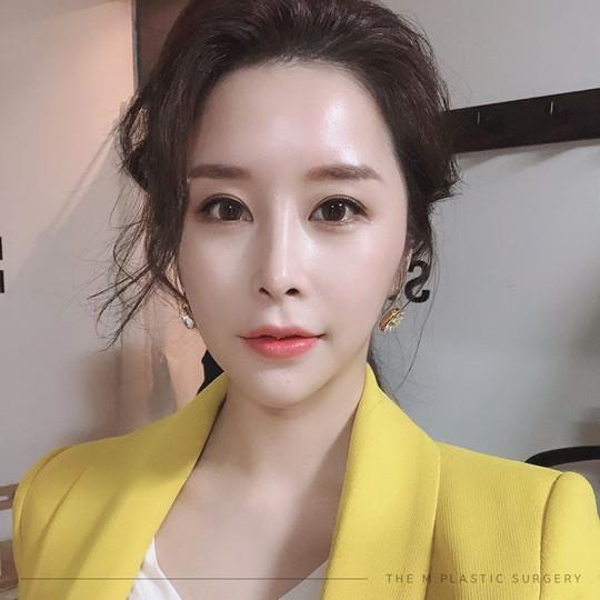 รีวิวศัลยกรรมเกาหลี