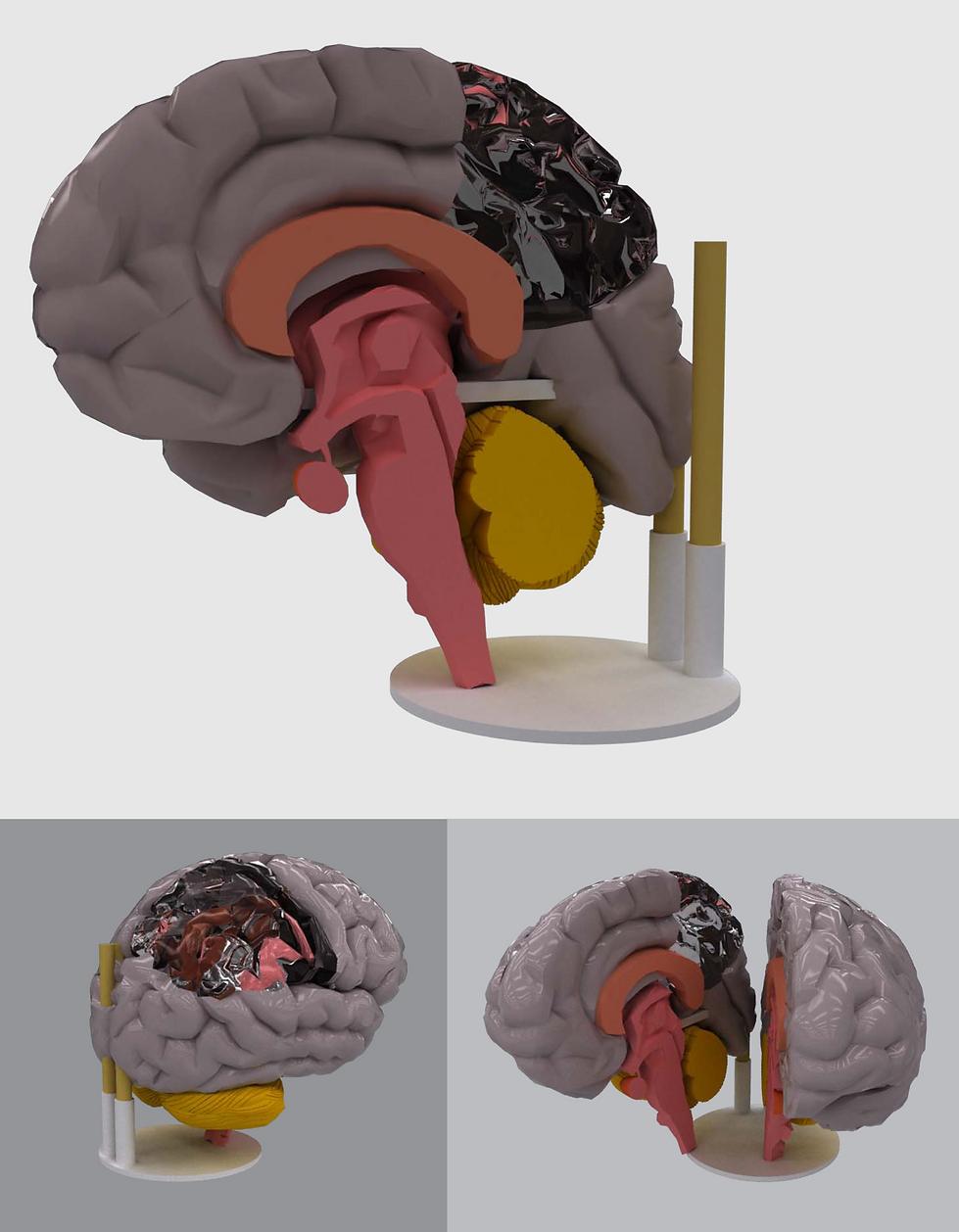 Corpo Humano Cérebro