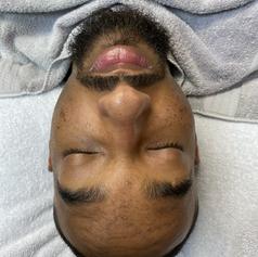 facial and beard care