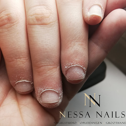 Nail-Biter Artist