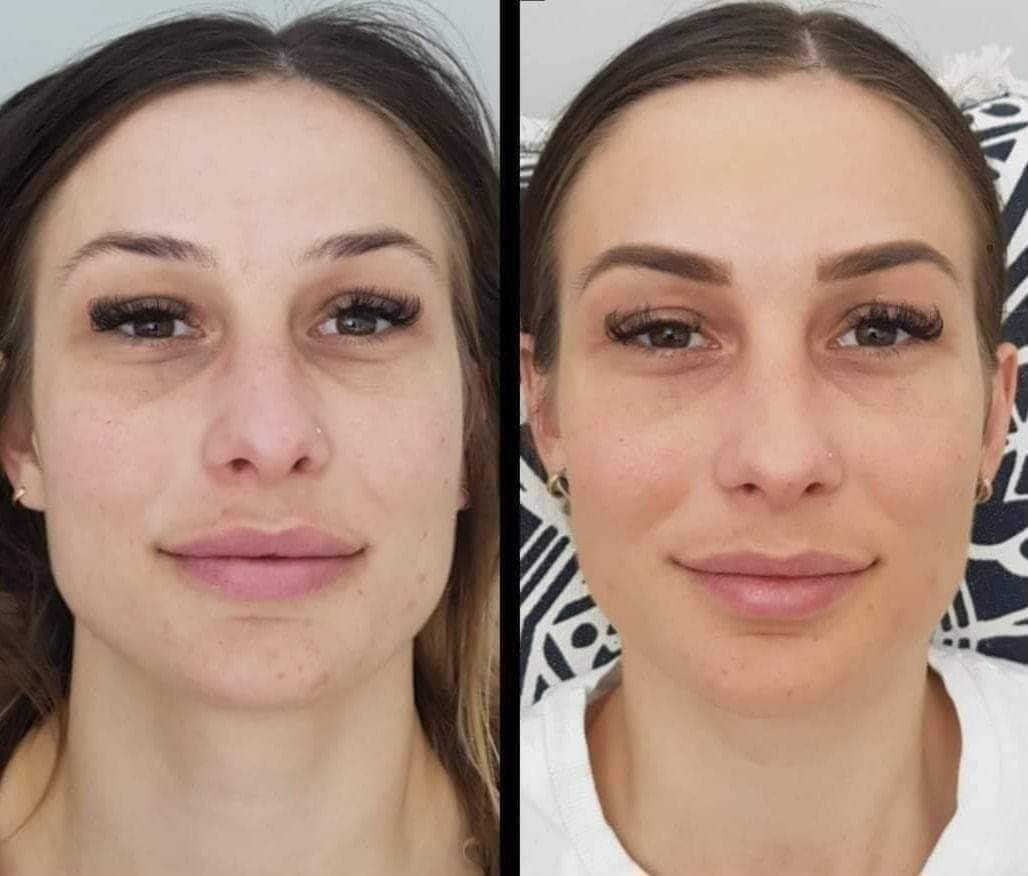 Permanent Makeup Before/After