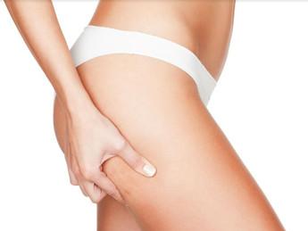 Celulite: veja os tratamentos que ajudam a combater