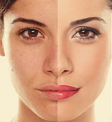 Best-Glycolic-Acid-Peel-At-Home-1080x600