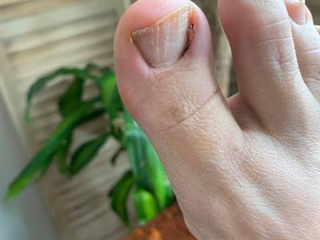 An Ingrown Toe Nail | The Dreamweaver