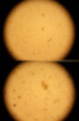 Juh-tragya-mikrobiol_2.jpg