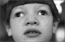 Слепой мальчик с косоглазием. 21.11.1987