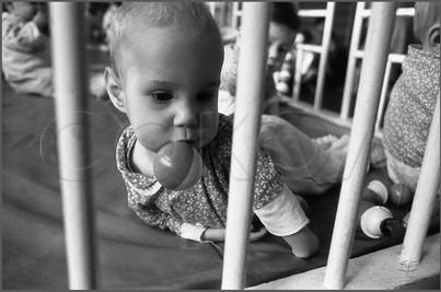 «Тюлень» - ребенок без кистей на руках. 26.10.1987
