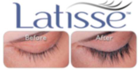 Latisse, Fuller Eyelashes, Botox, Juvederm, Fillers, Medspa Safety Harbor