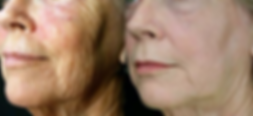 Medspa Safety Harbor, Laser Skin tightening, Fractionated laser, Fraxel, Skin tightening, Botox, Fillers