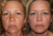 Botox and fillers, Medspa Safety Harbor, Full Facial Recontouring