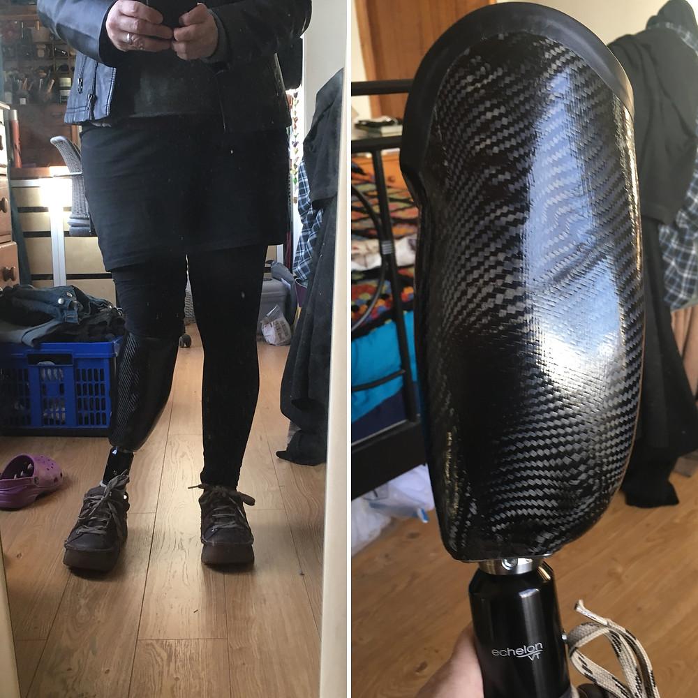 terrible, misaligned, unusable prosthesis
