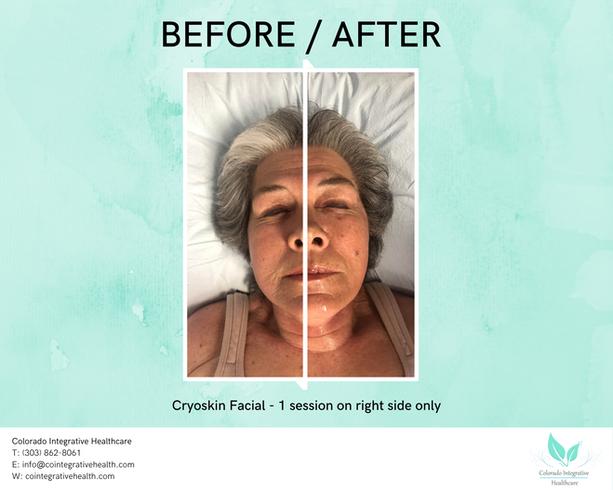 Cryoskin Facial