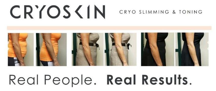 Cryoskin.JPG