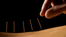 Conditions acupuncture is proven to help