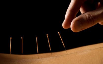 Akupunktur Nahaufnahme