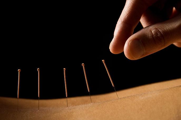 Acupuncture needles closeup