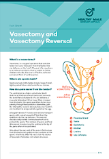 Vasectomy and vasectomy reversal