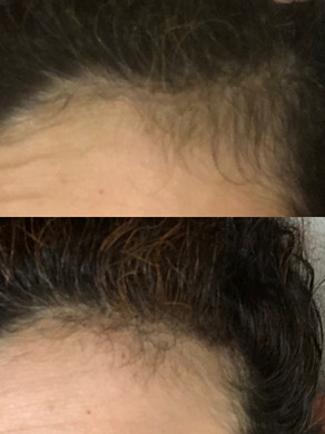 Essential Oil for Regrowing Hair in Bald Spots!