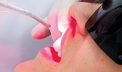 Laserterapia para mucosite
