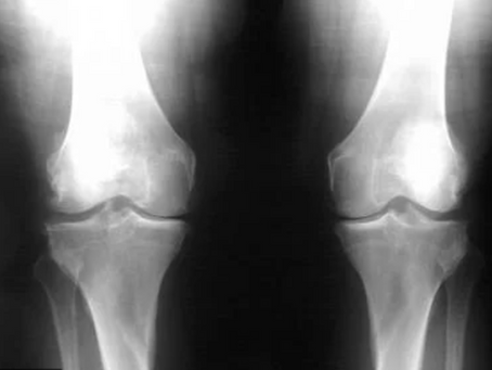FOUR FACTS ABOUT OSTEOARTHRITIS