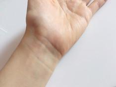 手首から指先のシビレ,,,手根管症候群かも!?