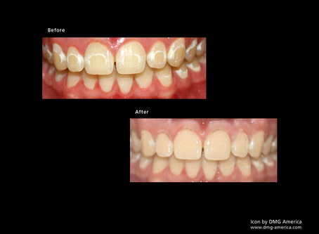Get Rid of White Spots on your Teeth Without Drilling