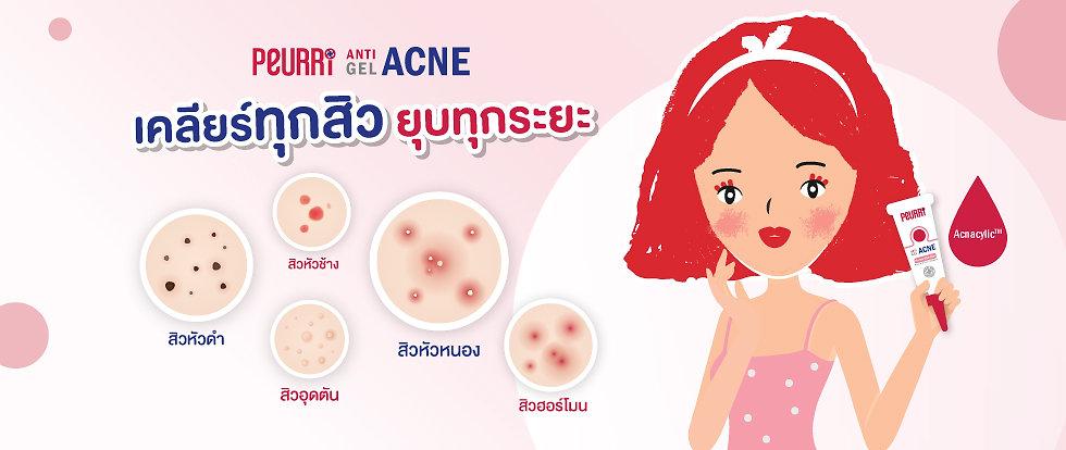 banner-acne-types-edit.jpg