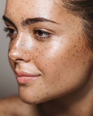 vascular lesion treatment freckles