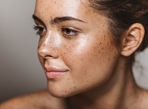 Young Woman with Freckles