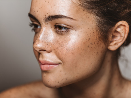 The Different Types of Skin Discoloration