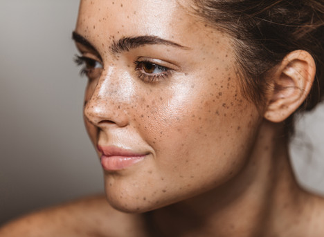 Why Manuka Oil is the best for skin breakouts.