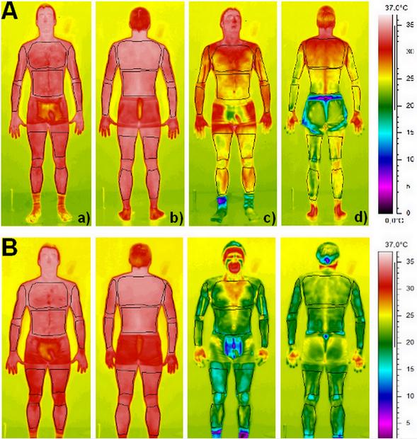Thermogrammes obtenus avant (a, b) et après (c, d) une séance de cryothérapie corps partiel (A) et une séance de cryothérapie corps entier (B)