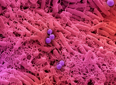 YOUR HEALTH AND THE MICROBIOME