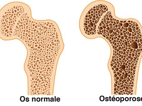 Ostéoporose : prévenez la fracture !