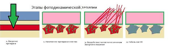 ФДТ_схема.jpg
