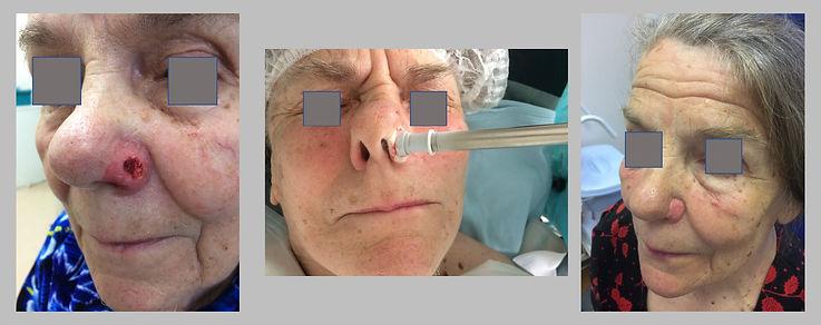Криодеструкция опухоли кожи.jpg