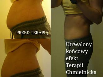 Teoria płaskiego brzucha - według Chmielnicka Therapy