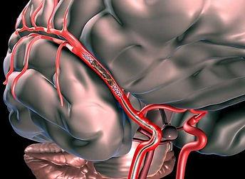 Mechanical%20Thrombectomy2_edited.jpg