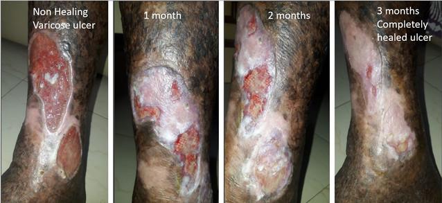 Varicose Ulcer