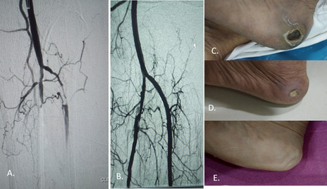 Peripheral Aretrial Disease