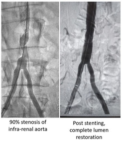Infrarenal Aortic Stenting