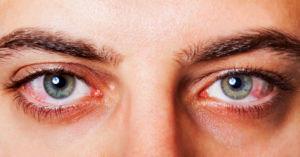 Por qué siento los ojos cansadosy se ponen rojos tras pasar tiempo en la computadora?
