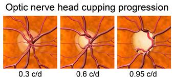 "Qué implica tener ""Sospecha de Glaucoma""?"