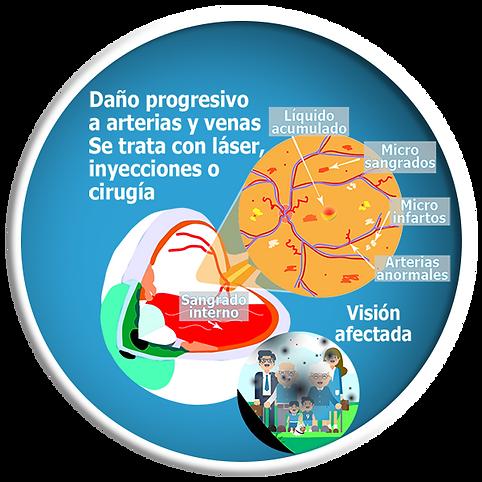 Retinopatía diabética.png