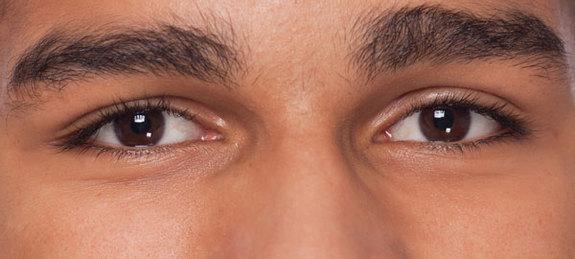 ojos con miopia