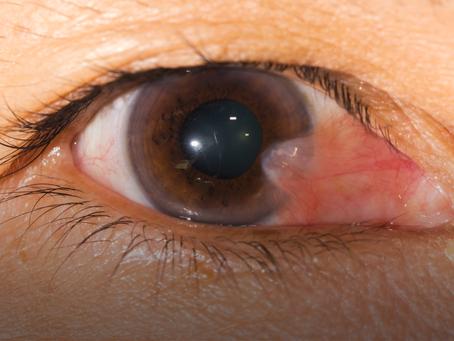 Qué es esa carnosidad que se ve en mi ojo?