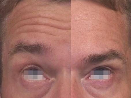 Cómo funciona la aplicación cosmética de Toxina Botulínica (Botox®, Dysport®)