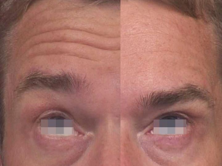 Fotografía comparativa del efecto la aplicación de Toxina Botulínica (Botox®, Dysport®) en arrugas de la frente, efecto a 4 semanas de la aplicación.