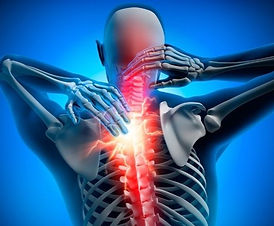 back-painconceptual-artwork3d-illustration-picture-id1156928027_edited.jpg