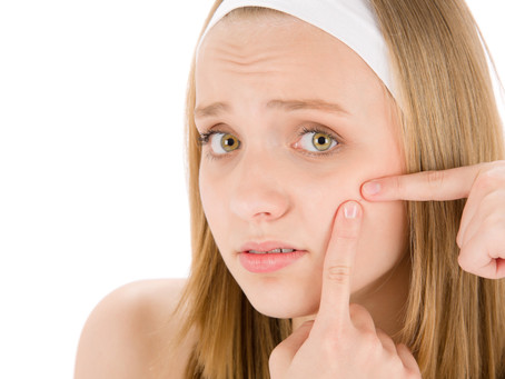 7 Reasons Why Do You Get Acnes?